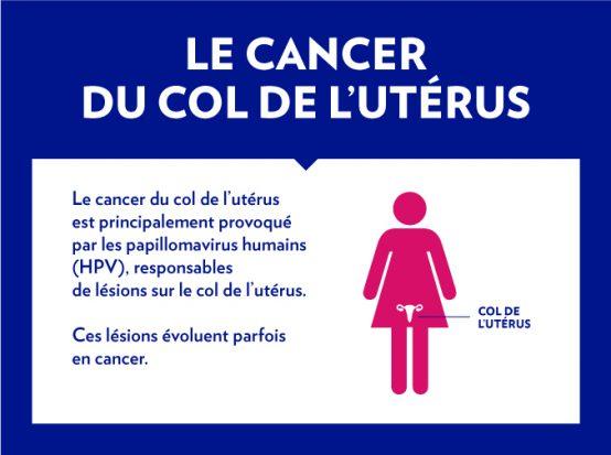 Infographie-Depistage-du-cancer-du-col-de-l-uterus
